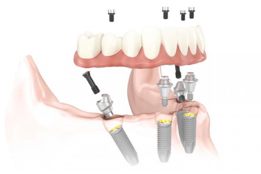 Implantes. Lo que todo el mundo debería saber