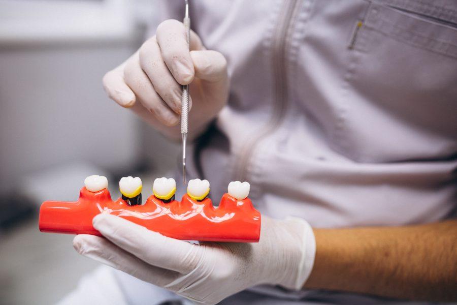 ¿La pérdida de dientes es hereditaria?